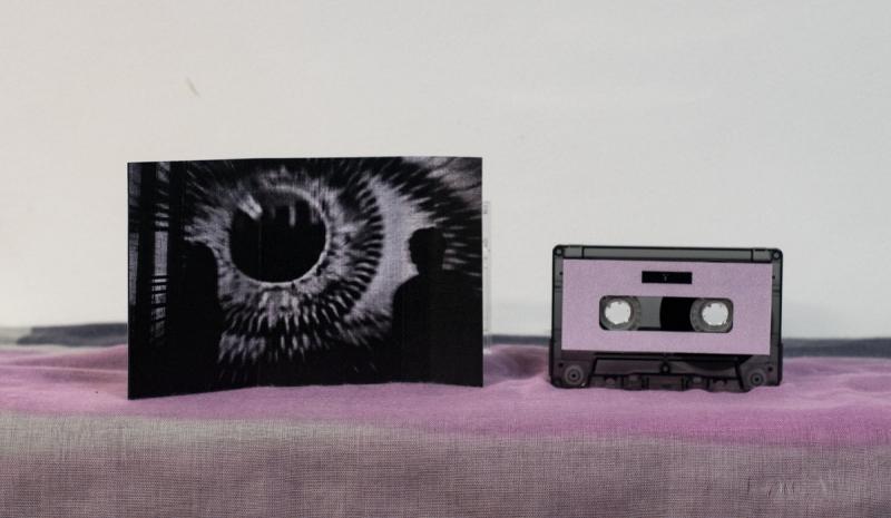 Infravox Records - Cimientos Fecundos - Fotofobia